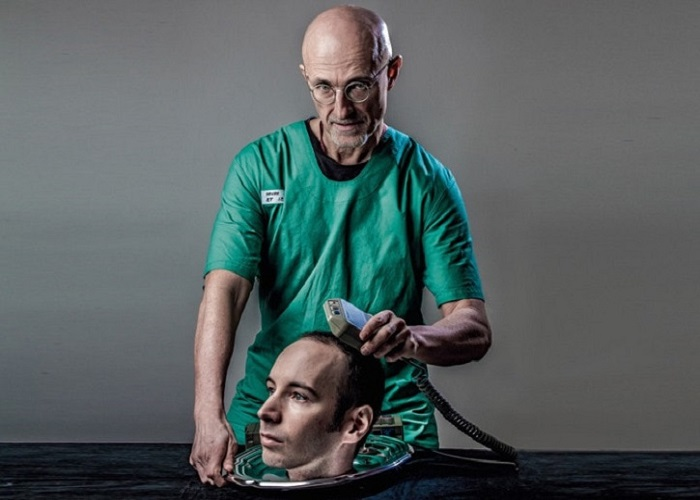 Worlds first Ever Human Head Transplant Scheduled For 2017
